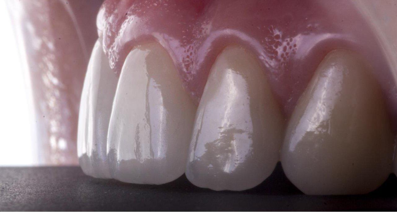 стоматология виниры цена
